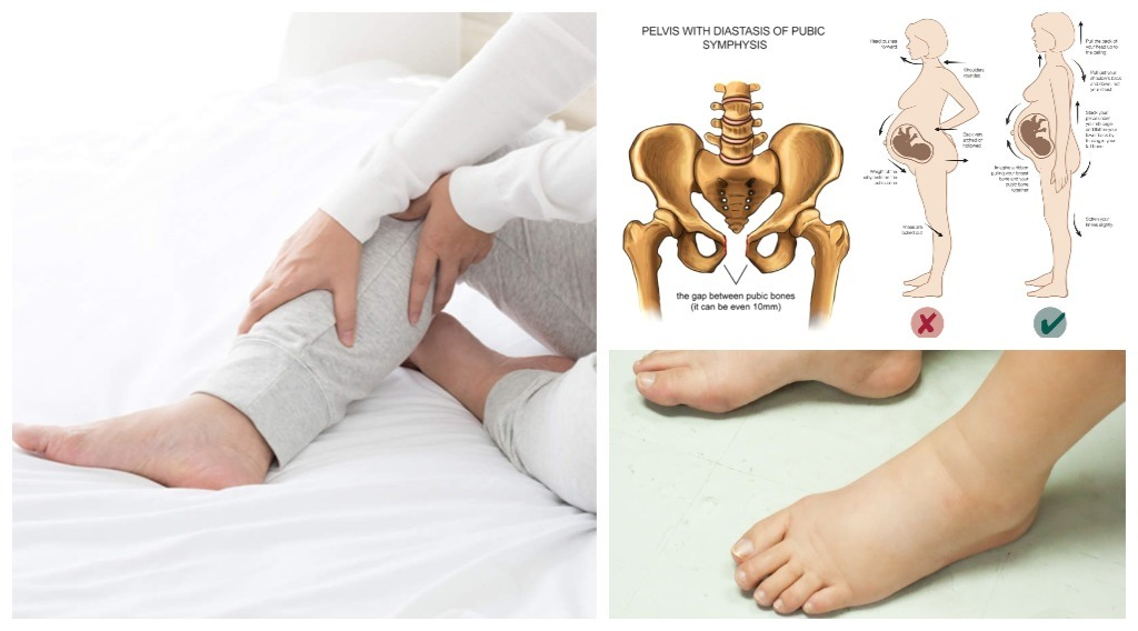 sakit lutut ketika hamil