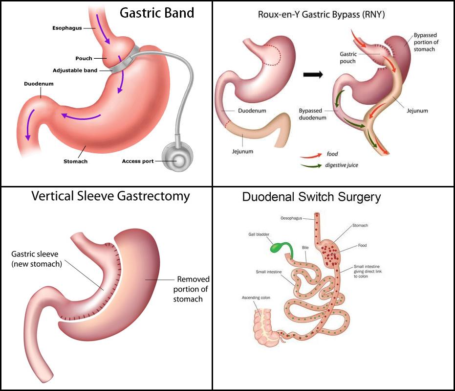pembedahan bariatric