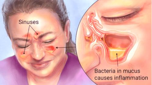 punca sinus