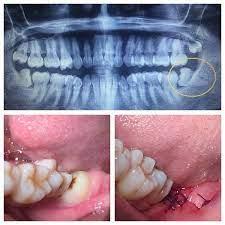 sakit gigi bongsu