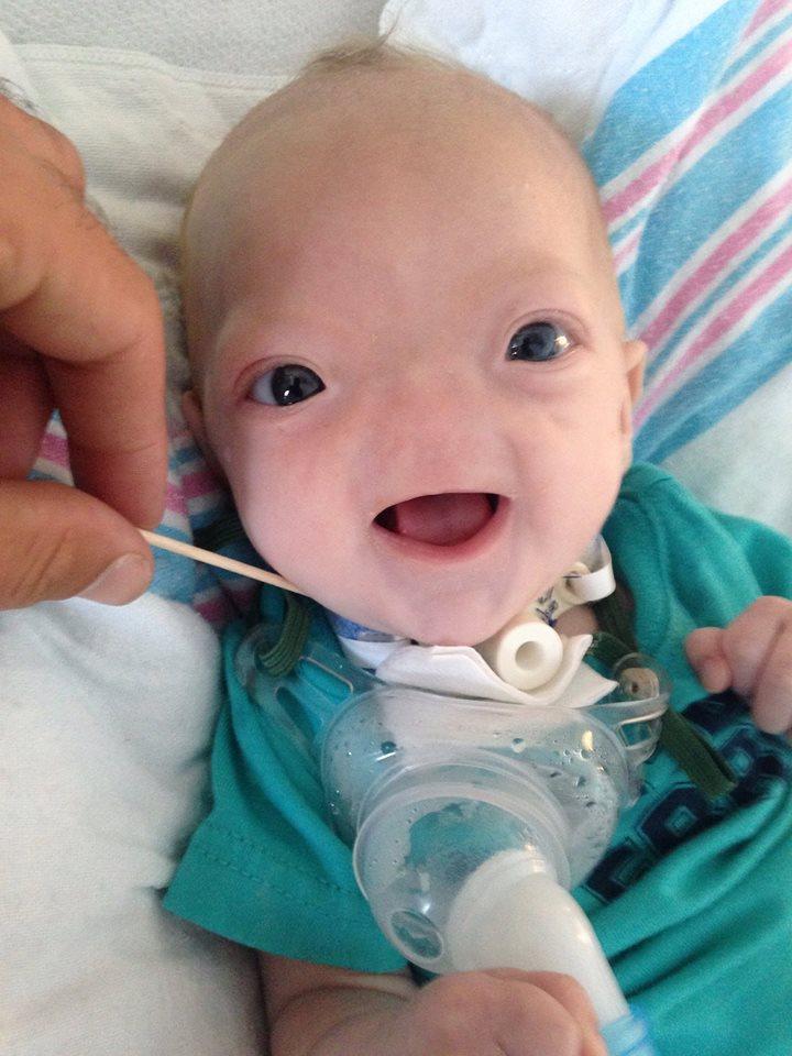 Bayi lahir tanpa hidung