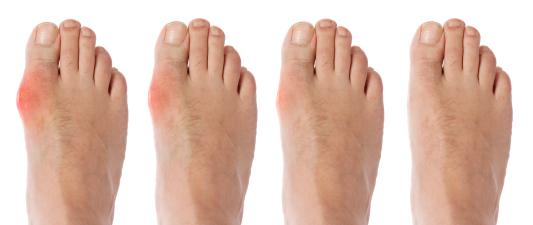 Cara menghilangkan gout
