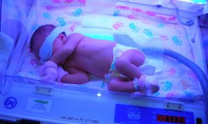 demam kuning bayi