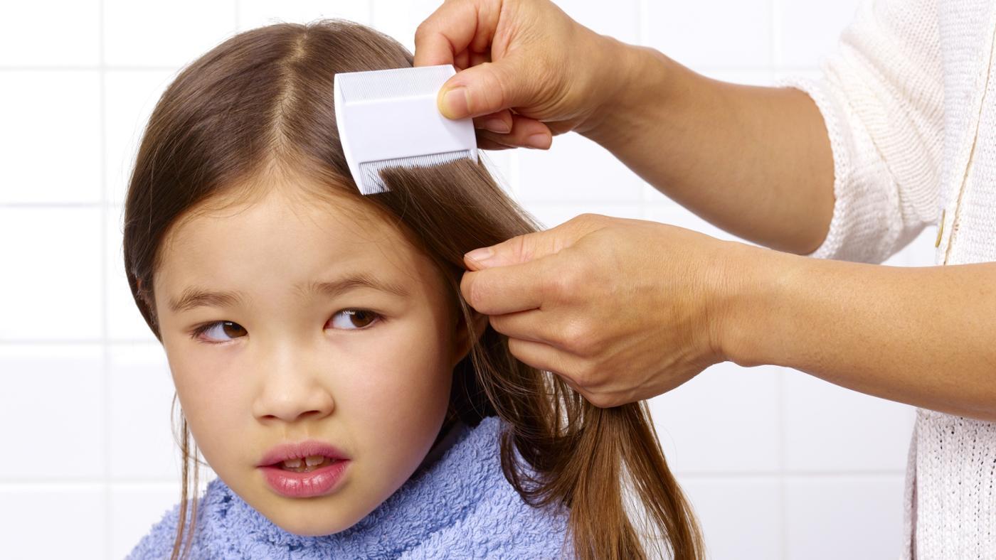 hilangkan kutu rambut