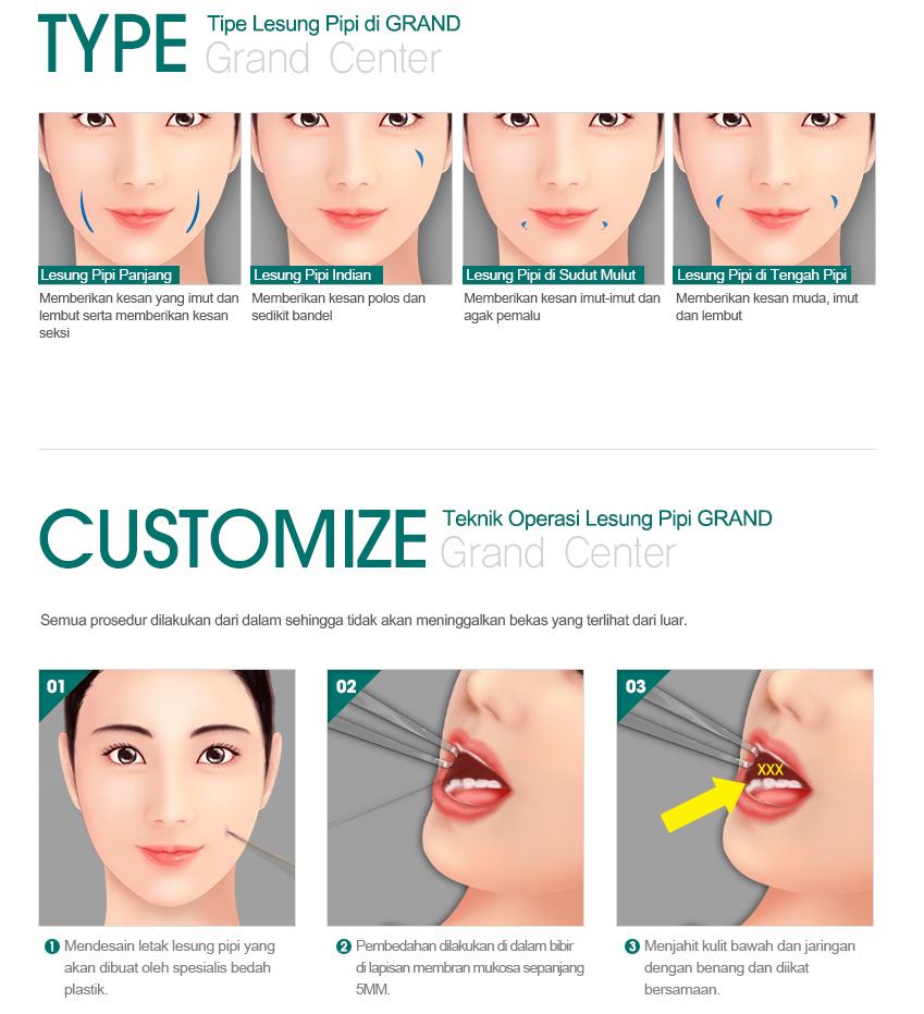 Kelebihan lesung pipit