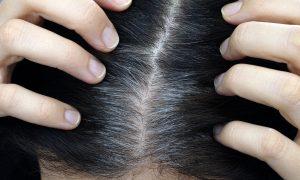 petua mencegah rambut beruban