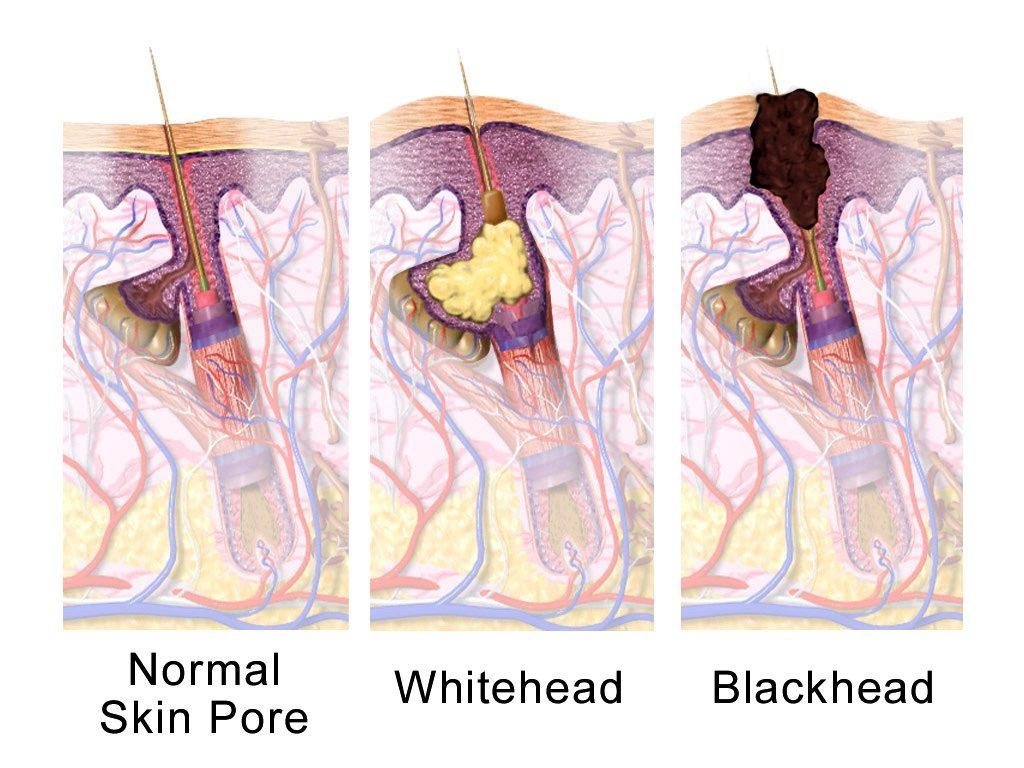 petua hilangkan blackhead