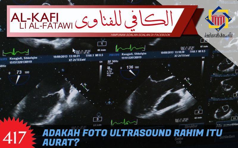 klinik ultrasound