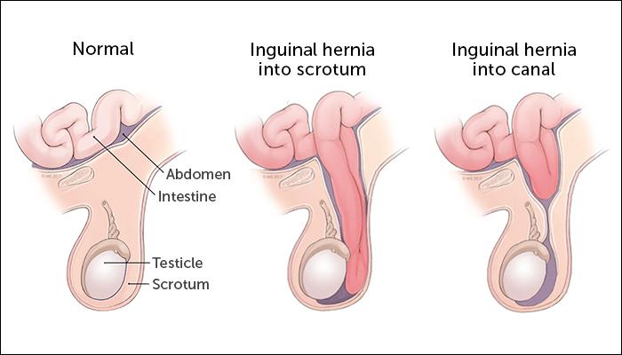 hernia bayi