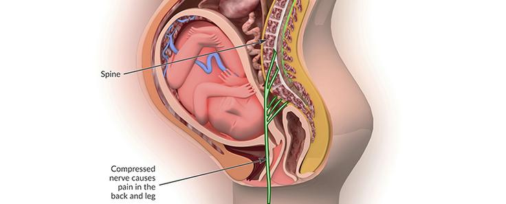 sakit punggung ketika hamil