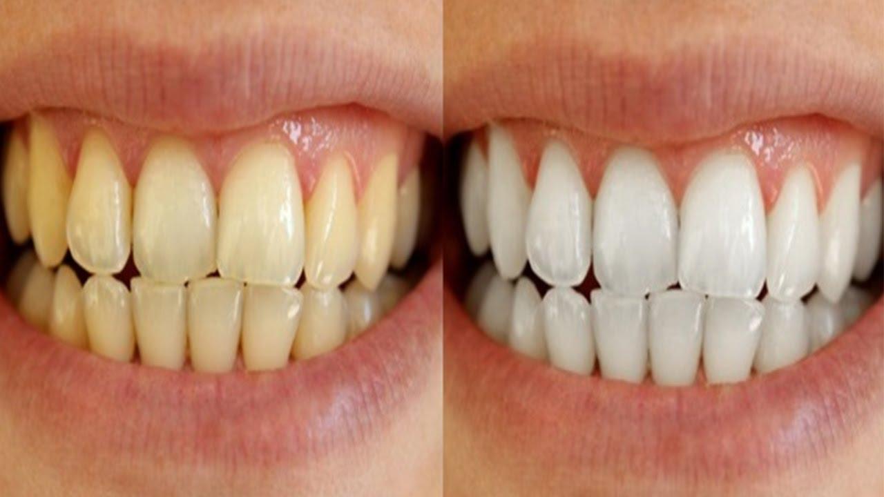 7 Cara Putihkan Gigi Dengan Selamat Semulajadi Tak Perlu Belanja