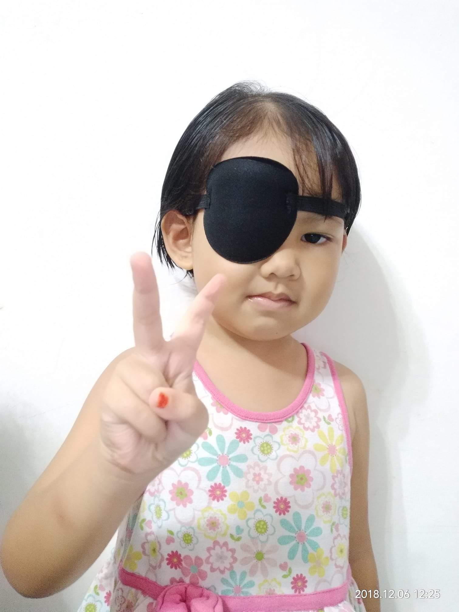 mata anak juling