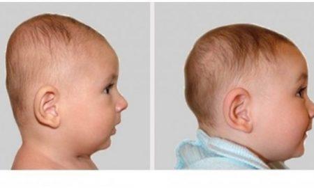 bentuk kepala bayi
