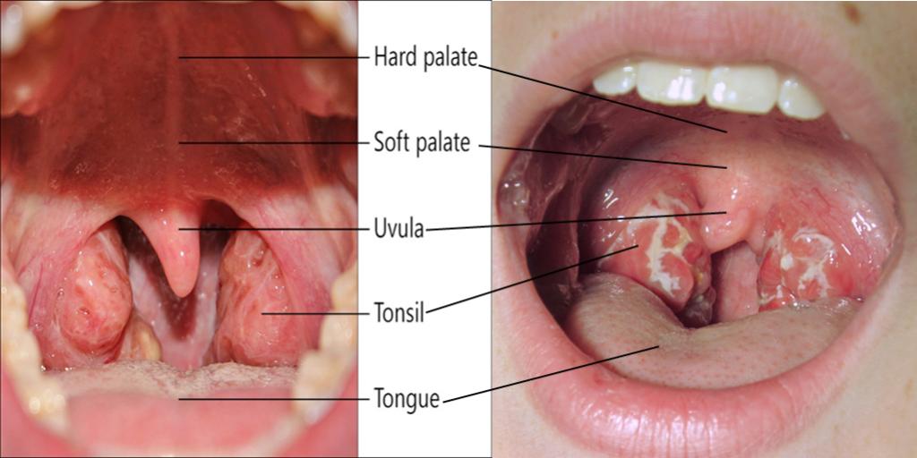 Pembedahan tonsil